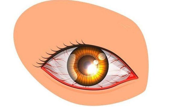 علل و درمان قرمزی چشمها