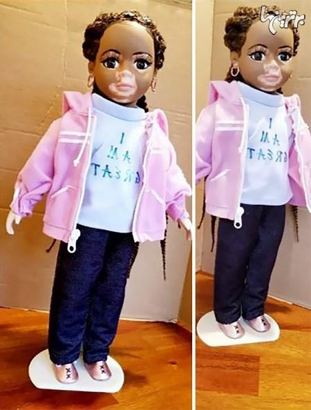 هنرمندی که عروسکهای مبتلا به پیسی میسازد