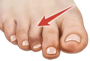 تمرینات ورزشی برای بهبود انگشت چکشی پا