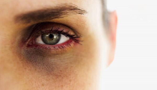 راه هایی برای درمان سیاهی و کبودی دور چشم