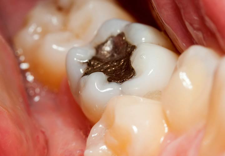 10 روش درمان دندان درد در خانه