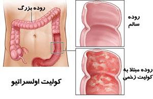 بیماری کوليت اولسراتيو