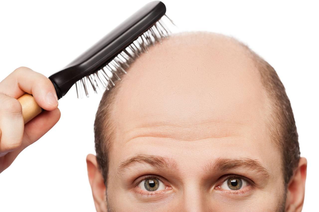 علت چرب شدن مو