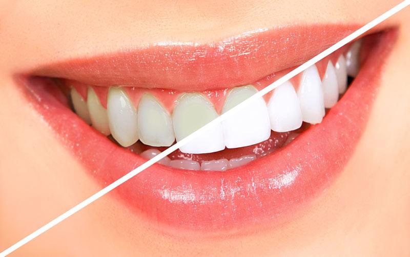 7 توصیه برای درست تمیز کردن دندانها