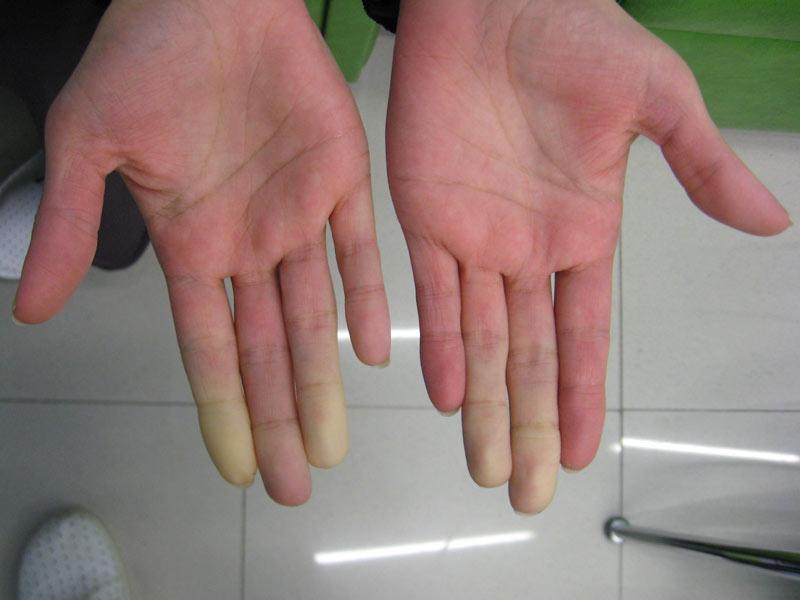 پدیده یا بیماری رینود چیست؟