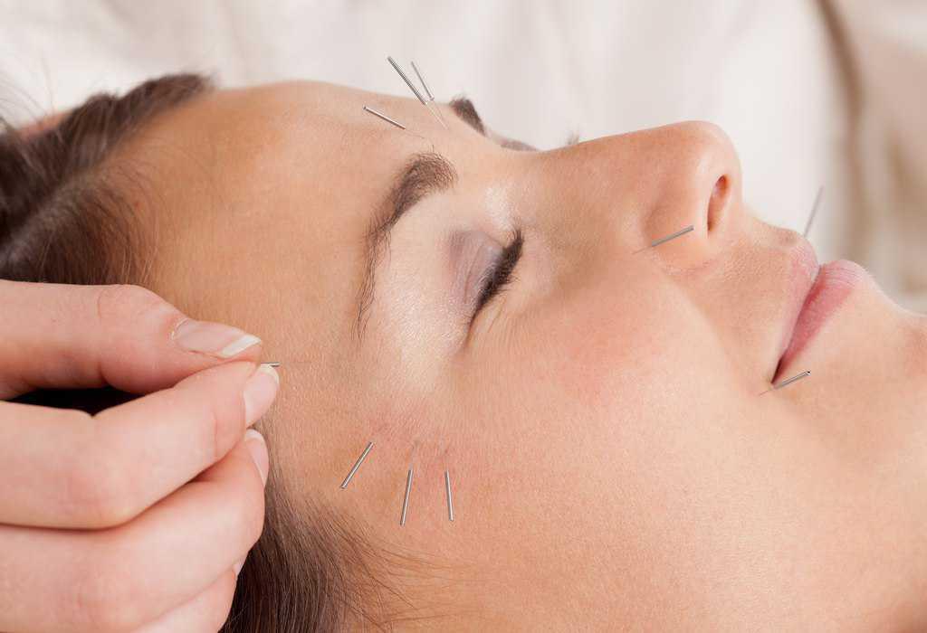 توصیه های طب سوزنی برای پوست شما
