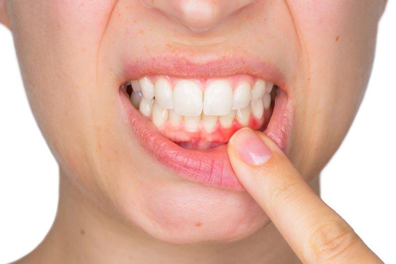 علل آبسه دندان و راه درمان آن