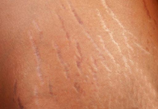 پرسش و پاسخ درباره ترک های پوستی
